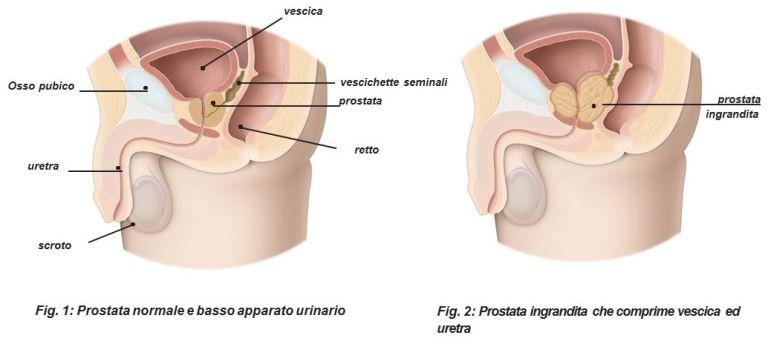 Pchelolechenie prostatite - Prostatilen analogica russo