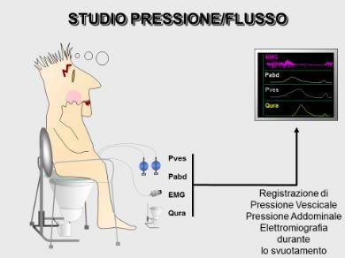 Ipertrofia Prostatica Benigna (IPB) – Diagnosi e Terapie